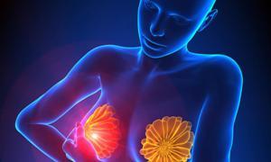 Безопасное облучение рака груди в Германии – инновационный метод