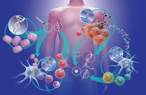 Иммунотерапия – новый успешный подход к лечению рака без операции