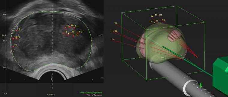 биопсия предстательной железы под контролем УЗИ и фьюжн-биопсия