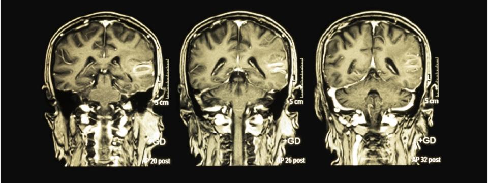 Новости партнеров. Врачи Сан-Раффаэле первыми в мире удалили опухоль мозга с помощью роботоскопа