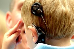 Кохлеарные импланты в клиниках Германии: революционная технология, возвращающая способность слышать