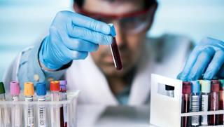 Ученые разработали новую тест-систему, которая определит форму течения коронавируса до появления симптомов