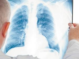 Рентген или компьютерная томография? Какой метод предпочтительнее для диагностики COVID-19