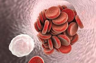Еще одно осложнение коронавируса: вирус запускает процесс образования тромбов