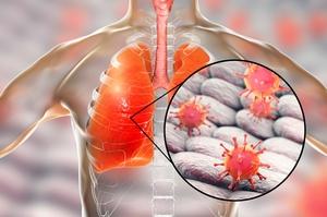 Тяжелый острый респираторный синдром (2002-2003)
