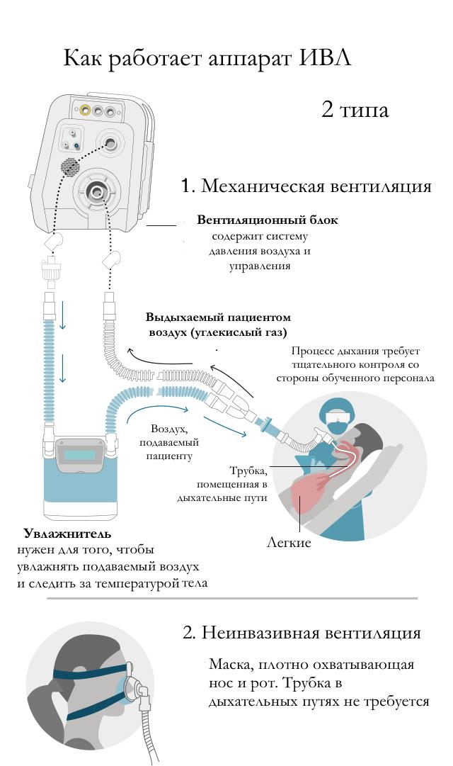 Как работает искусственная вентиляция легких