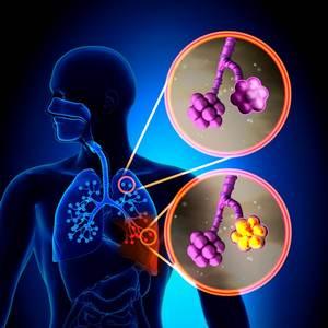 Воспаление легких и коронавирусная пневмония: действительно ли вирус опаснее?