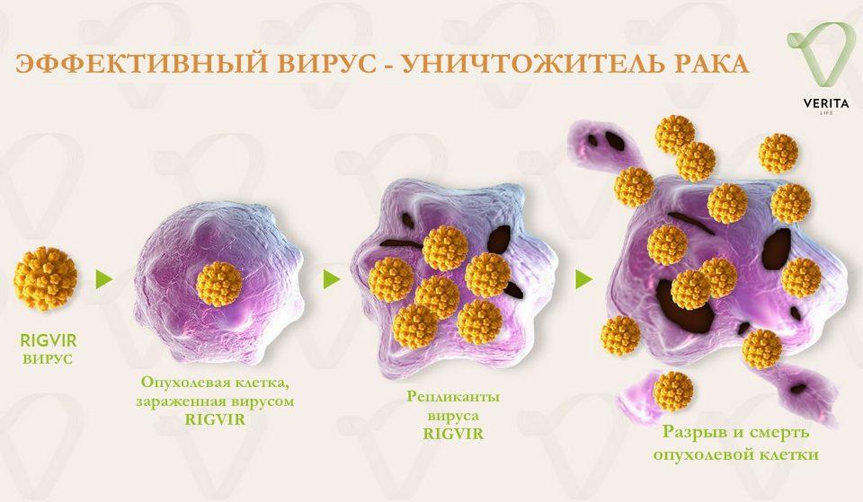 Виротерапия: инновационный метод лечения рака вирусами в клиниках Европы