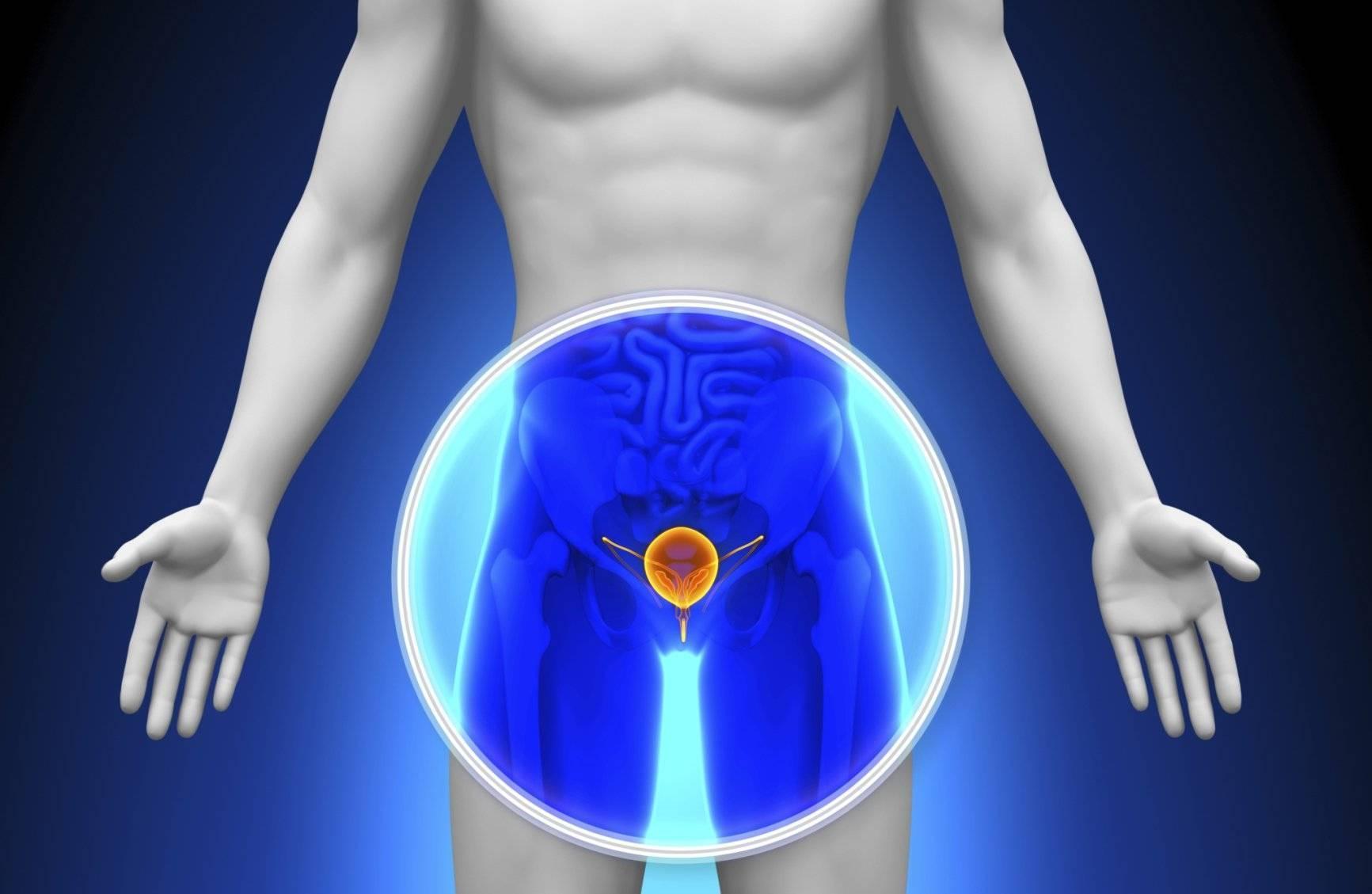 Рак простаты: лечение в  Германии. Методы лечения рака предстательной железы в немецких клиниках