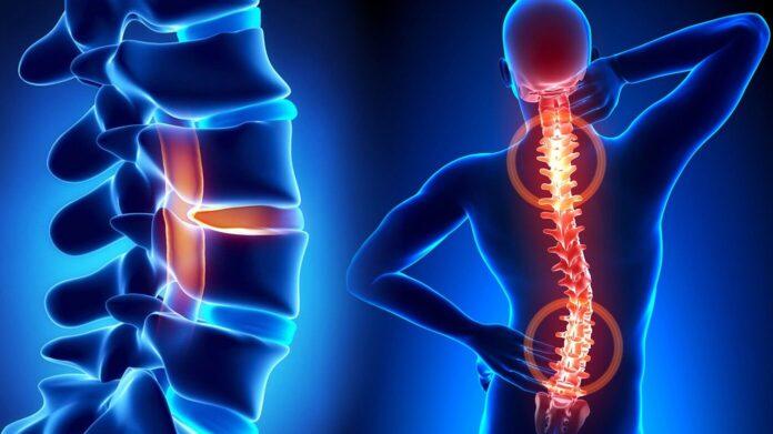 Лечение заболеваний позвоночника в Германии: сколиоз, остеохондроз, восстановление после перелома позвоночника