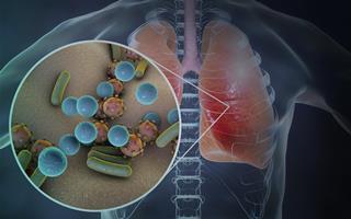 Вторичная бактериальная инфекция после ИВЛ – медлить нельзя! Врачи нашли решение!
