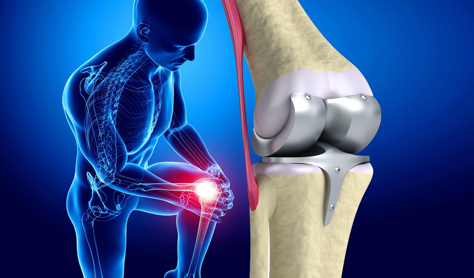 Ортопедия, ревматология и травматология в Германии: лечение позвоночника, суставов и  восстановление после травм в немецких клиниках